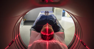 Radiation Damage can now be minimized significantly with the new Deep- learning method that Spots Organs on CT Scans