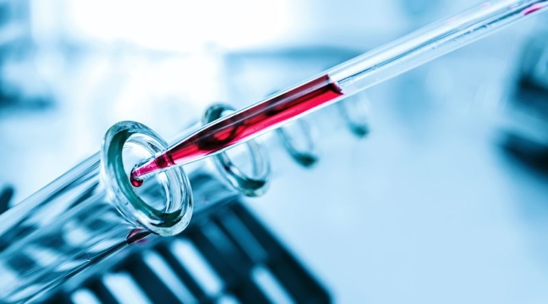 Liquid Health Check Could Help in Disease Risk Prediction - Suggests a New Study